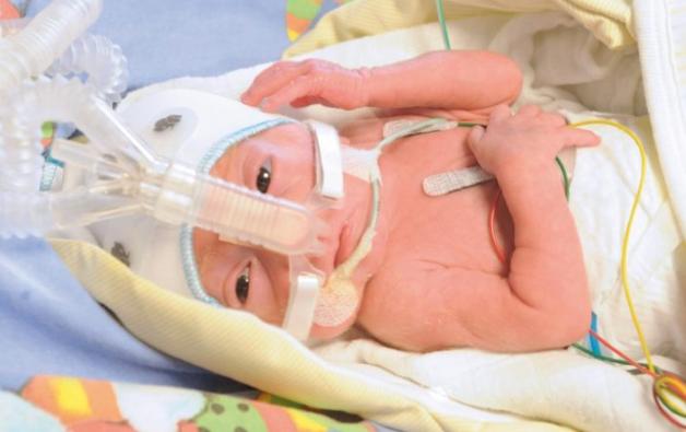Những em bé sinh non tuần thứ 33 vẫn có nguy cơ mắc biến chứng sinh non