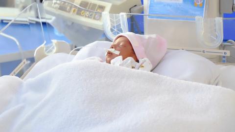 Trẻ sinh non 33 tuần có thể phát triển bình thường không?