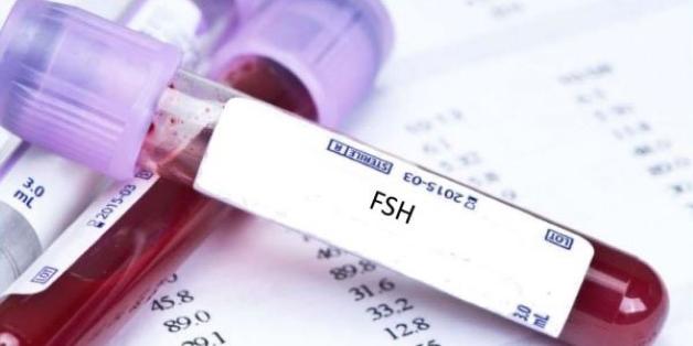 Xét nghiệm nồng độ FSH