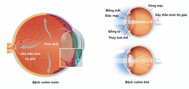 Đcụ thủy tinh thể có thể gặp ở bất kỳ độ tuổi nào nhưng được ghi nhận nhiều nhất là từ 50 trở lên