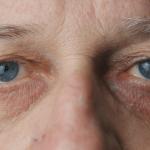 Nguyên nhân của bệnh đục thủy tinh thể người già là gì?
