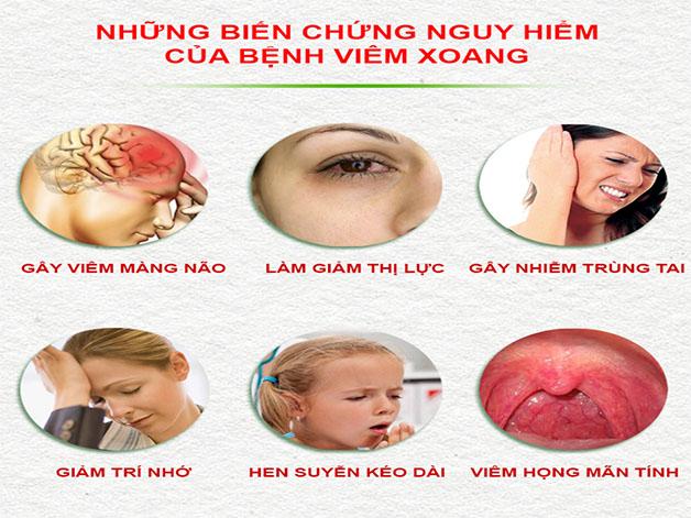 Bệnh viêm xoang mũi có nguy hiểm không khi dễ xảy ra nhiều biến chứng.