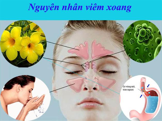 Tổng hợp một số nguyên nhân phổ biến dẫn đến viêm xoang.