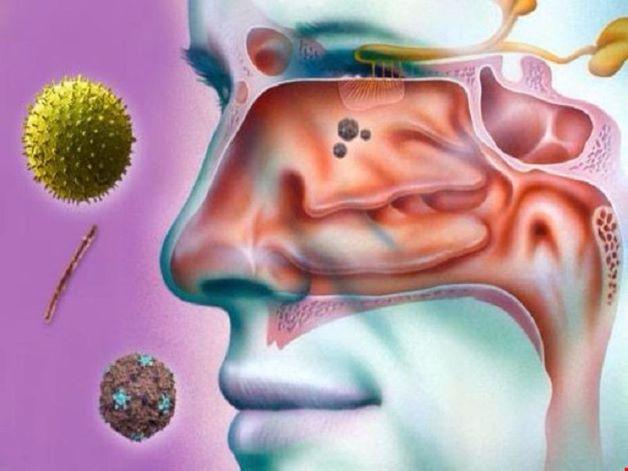 Các loại nấm và vi khuẩn này xâm nhập và phát triển trong các xoang, làm tổn thương tế bào lông chuyển ở niêm mạc xoang