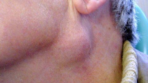 Biểu hiện ung thư vòm họng giai đoạn sớm bạn nên biết