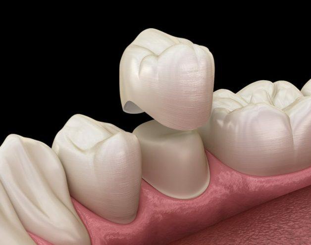 Bác sĩ sẽ tiến hành mài cùi răng thật sau đó bọc mão răng sứ giả bên ngoài.