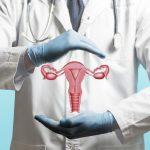 Các phương pháp điều trị ung thư cổ tử cung hiệu quả