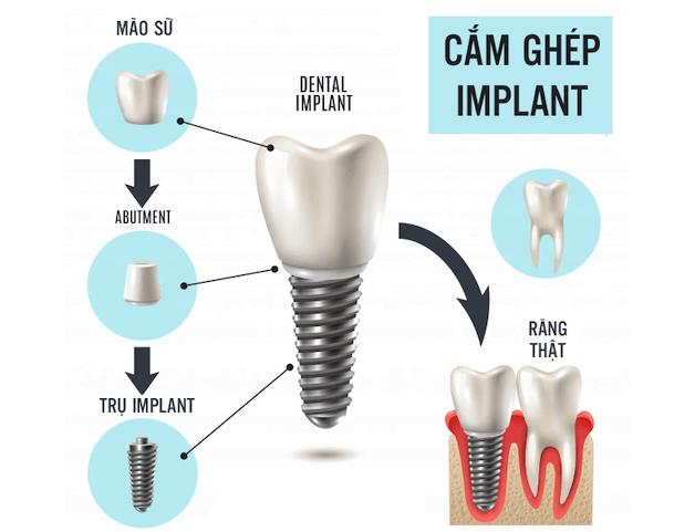 Trồng răng implant được đánh giá là giải pháp tối ưu cho hầu hết các trường hợp mất răng.