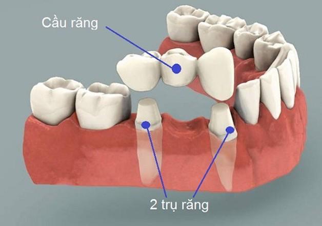 Cầu răng sứ là phương pháp có trước implant và là phương pháp phổ biến nhất từ trước đến nay.