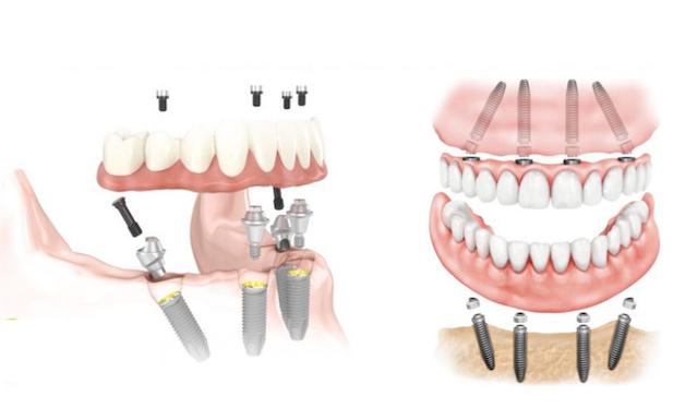 Implant là phương pháp dành cho những người bị mất răng toàn hàm nhưng không muốn đeo hàm giả tháo lắp.