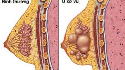 Chọc hút tế bào khối u vú: Những điều cần biết!