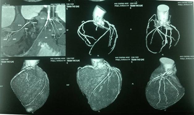Kỹ thuật chụp CT mạch vành tiêm thuốc cản quang