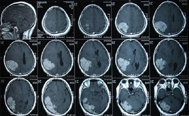 Hình ảnh chụp CT sọ não