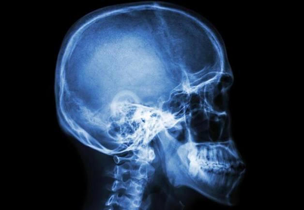 Hình ảnh chụp X quang sọ não
