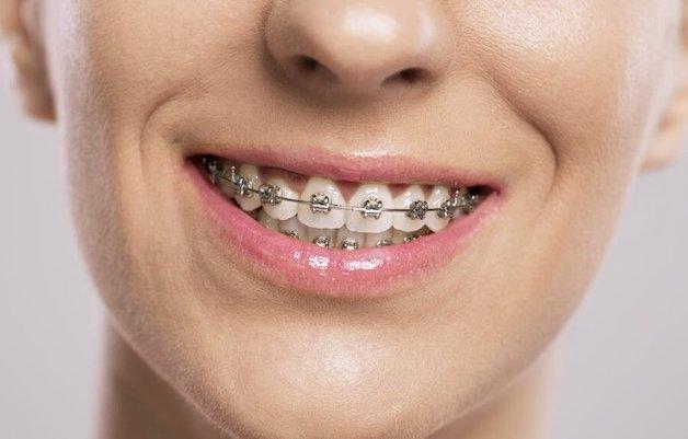 Niềng răng mắc cài kim loại là phương pháp có chi phí rẻ nhất trong tất cả các phương pháp niềng răng.
