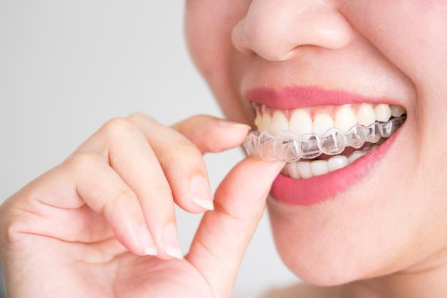 """""""Có nên niềng răng bằng phương pháp invisalign"""" là thắc mắc của rất nhiều người."""