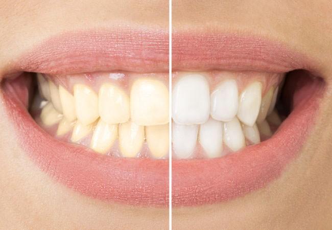 Tẩy trắng răng giúp bạn lấy lại vẻ sáng bong cho hàm răng song không phải trường hợp nào cũng có thể tẩy trắng