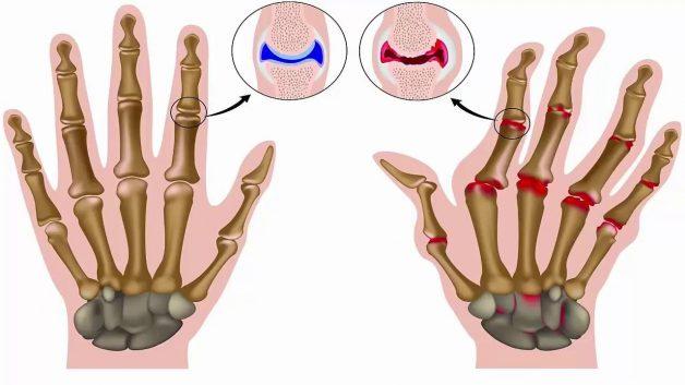 Biến chứng của các bệnh lý cơ xương khớp