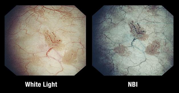 Công nghệ nội soi NBI 5P quan sát sắc nét