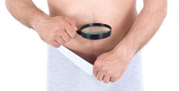 Thói quen kéo bao quy đầu của nam giới cũng là một trong những nguyên nhân gây bệnh