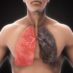Dấu hiệu và cách điều trị ung thư phổi giai đoạn đầu