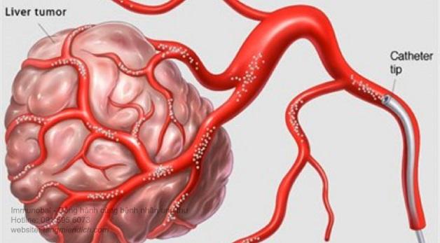 Phương pháp TOCE được thực hiện theo nguyên lý sử dụng các thuốc nút mạch để ngăn chặn nguồn cung cấp máu từ động mạch cho khối u ác tính trong gan, khiến các khối u dần hoại tử.
