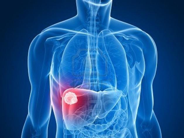 TOCE là phương pháp điều trị u gan hiệu quả mà không cần phẫu thuật