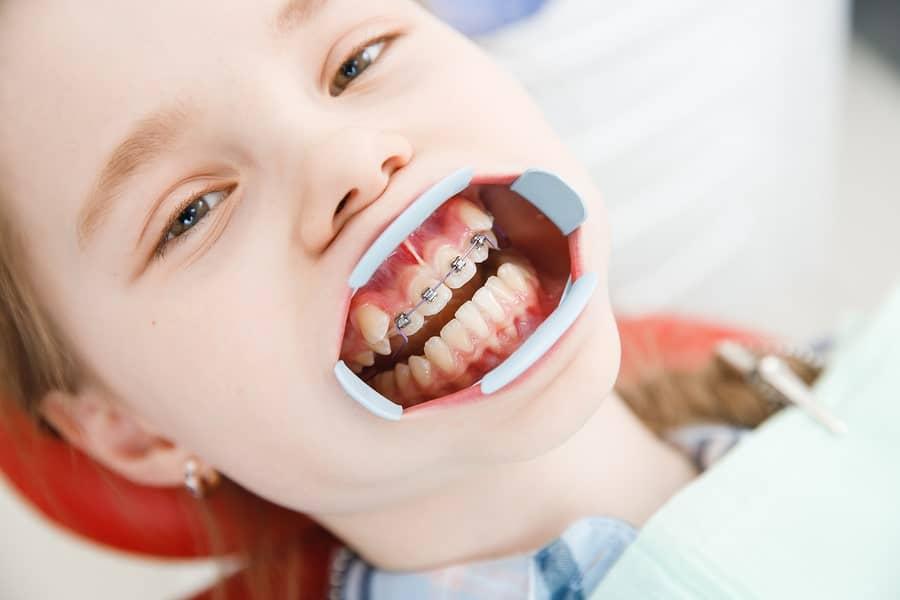Độ tuổi niềng răng