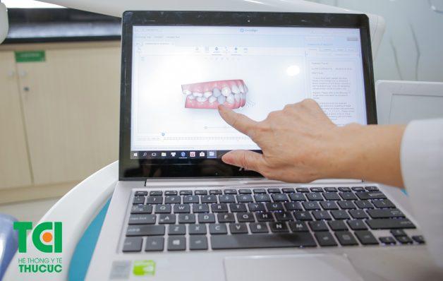 Bệnh nhân có thể thấy rõ sự thay đổi của cung hàm và các răng cho đến khi hoàn tất quá trình niềng răng qua màn hình 3D