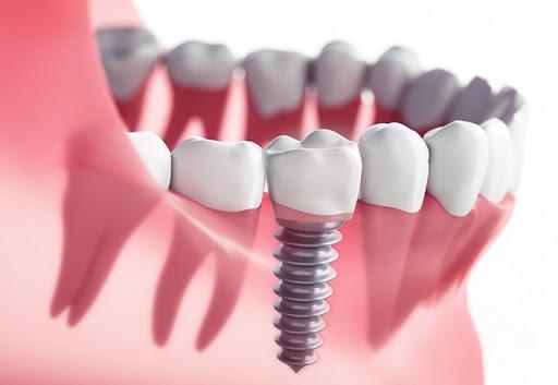 Răng implant được đánh giá cao vì tính thẩm mỹ cũng như sự thuận tiện trong sinh hoạt cho người bệnh
