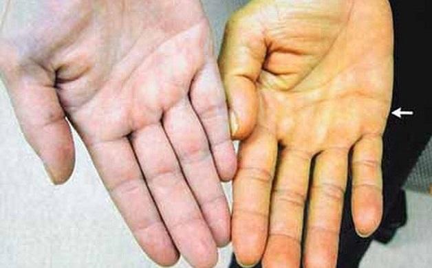 khám bệnh viêm gan B ở đâu và khi nào cần khám