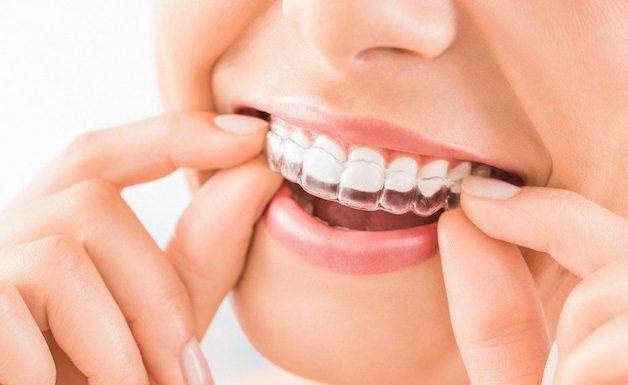 Niềng như không niềng là một trong những ưu điểm lớn nhất của phương pháp nắn chỉnh răng hô Invisalign.