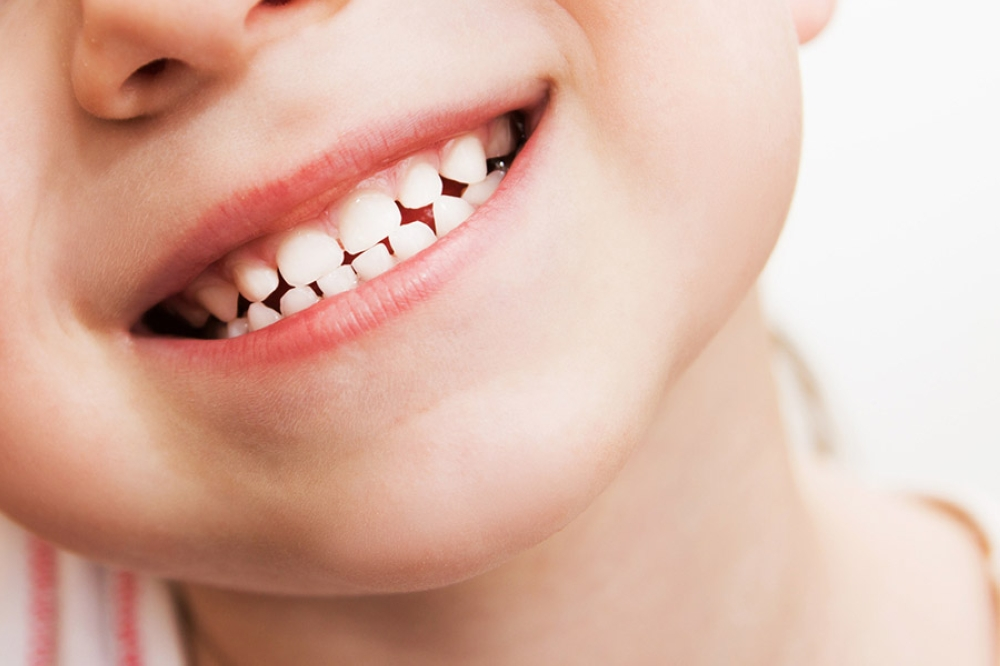 Răng sữa có vai trò quan trọng đối với trẻ