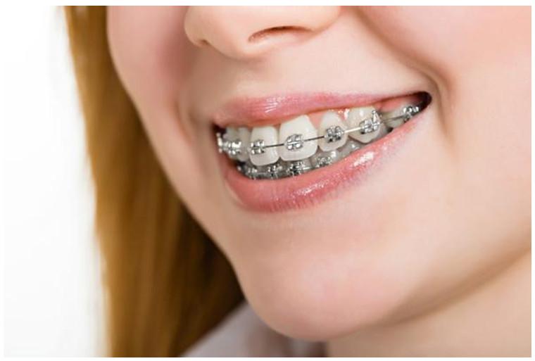 Quá trình niềng răng cũng có một số hạn chế