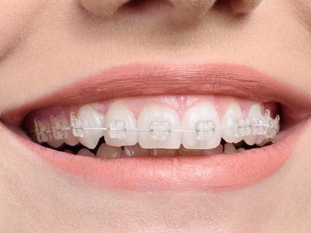 Niềng răng mắc cài sứ là phương pháp sử dụng hệ thống mắc cài sứ có màu sắc rất giống với màu của răng thật.