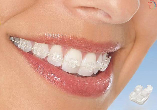 Niềng răng với mắc cài bằng sứ đảm bảo tính thẩm mỹ, giúp người bệnh tự tin hơn trong giao tiếp và trong cuộc sống thường ngày.