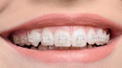 Niềng răng mắc cài sứ cần phải lưu ý những gì?