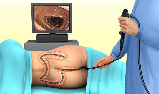 Nội soi đại tràng là việc đưa ống nội soi vào bên trong cơ thể để quan sát