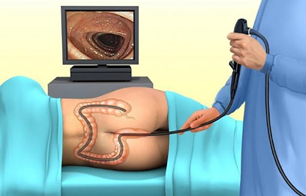 Bạn nên hỏi trước bác sĩ về quy trình nội soi đại tràng để khi tới khám không bị lúng túng