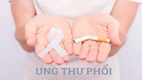 Phác đồ điều trị ung thư phổi: Những điều đáng chú ý