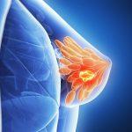 Phác đồ điều trị ung thư vú khi bị tái phát