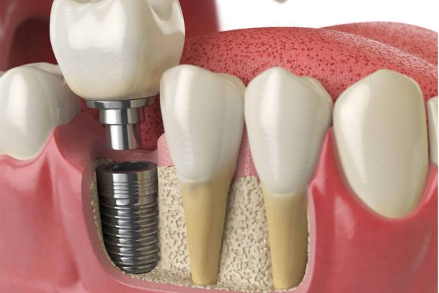 Phương pháp cấy ghép implant là phương pháp gì