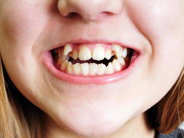 Răng thừa là gì