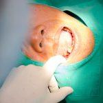 Sâu răng hàm có nên nhổ hay không?