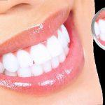 Tẩy trắng răng có đau không và những lưu ý kèm theo