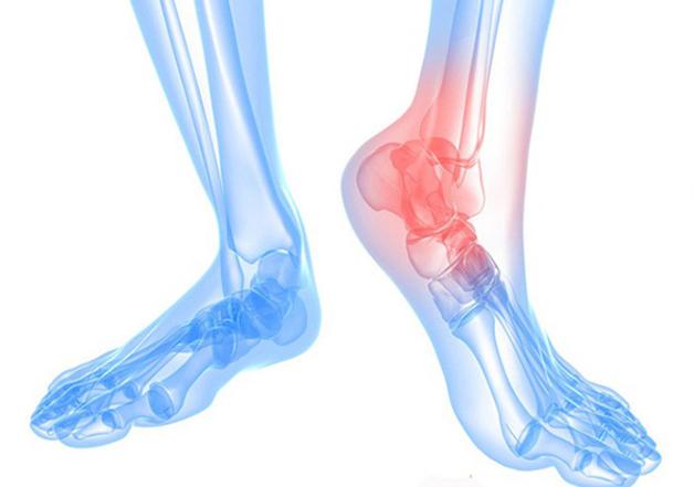 Thoái hóa khớp cổ chân là gì