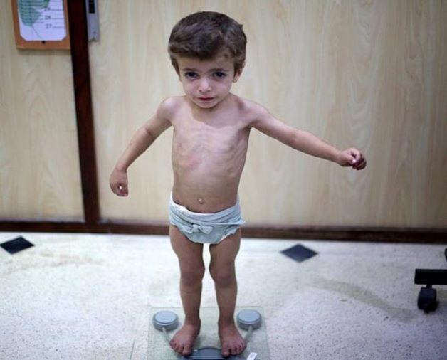Bé bị suy dinh dưỡng là tình trạng trẻ nhỏ bị thiếu năng lượng và chất dinh dưỡng, tình trạng này để lại hậu quả nặng nề khiến cho trẻ chậm phát triển về cả thể chất, trí tuệ, sức đề kháng