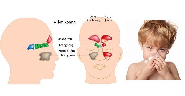 Viêm xoang mũi là bệnh lý tai mũi họng phổ biến ở trẻ em