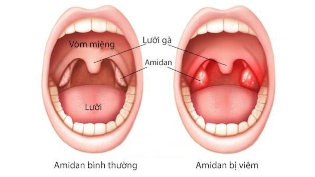 Viêm amidan xuất hiện khi cơ thể trẻ bị quá nhiều vi khuẩn hoặc virus ồ ạt xâm nhập vào cơ thể và amidan không đủ sức kháng cự.