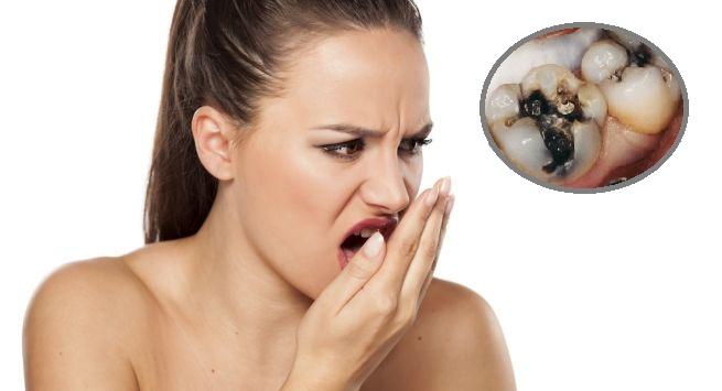 Hôi miệng sâu răng ảnh hưởng rất lớn đến sinh hoạt hằng ngày của người mắc phải và người xung quanh